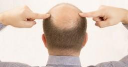 90后的男人头顶越来越秃是怎么回事?