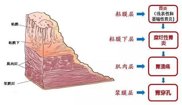 """被辣""""毁掉""""了的中国胃 饮食文化 第9张"""