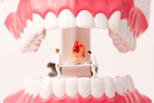 """看一次牙,就得花费好几万?揭穿:中国牙科真有那么""""暴利"""" 健康养生 第3张"""