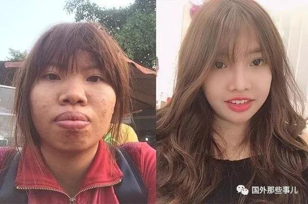 丑姑娘花9万整容后嫁富二代,生完孩子后被抛弃如今成网红 网文选读 第2张
