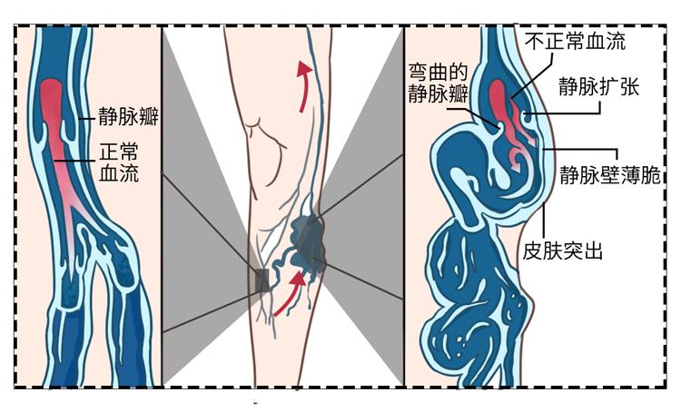 喜欢跷二郎腿的人,身体迟早发生4个可怕变化,只是你还不知道 健康养生 第4张