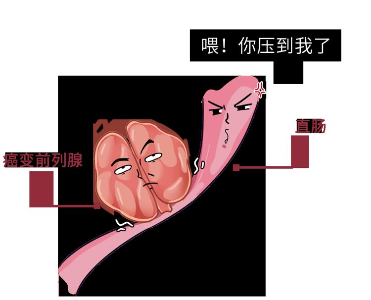 提醒一句:男人想保护好前列腺,这6件小事可别漏做了 生活与健康 第7张