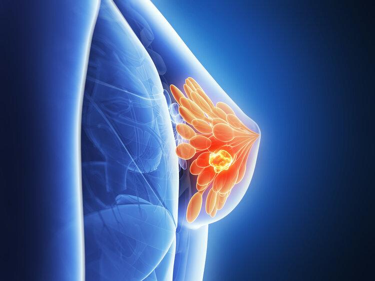 """5类女性易被乳腺癌""""盯上"""",提前发现4种异常,或能躲过一劫 生活与健康 第3张"""