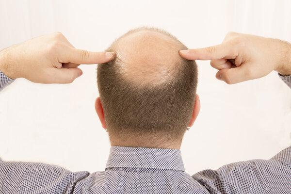 90后的男人头顶越来越秃是怎么回事?第1张-无忧岛网 90后的男人头顶越来越秃是怎么回事? 生活与健康
