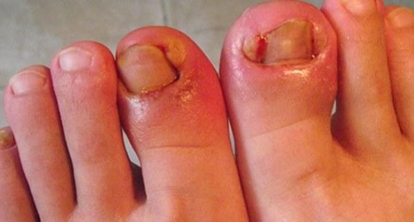 """长期穿高跟鞋竟有7个危害,两大技巧助你避开这些""""坑"""" 健康养生 第4张"""