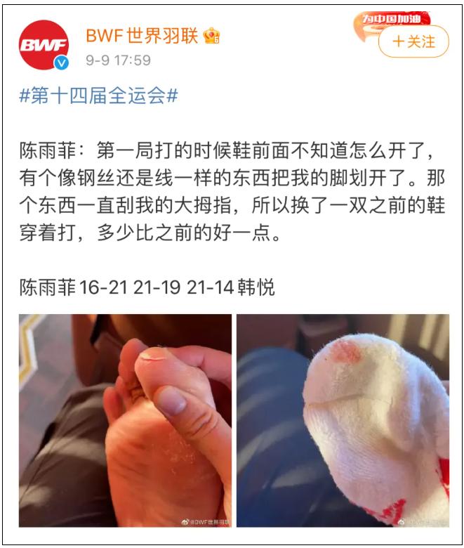 陈雨菲比赛中脚被鞋割伤,突发伤情,李宁方面紧急回应 网文选读 第1张